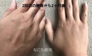 手の甲脱毛効果