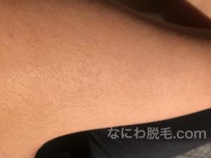 レジーナクリニック二の腕脱毛3回目の効果