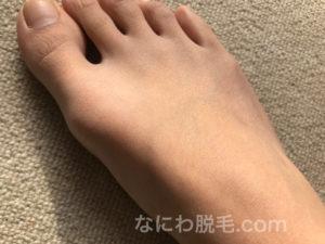 レジーナクリニック足の甲と指脱毛3回目の効果