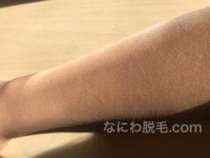 レジーナクリニック腕脱毛の効果